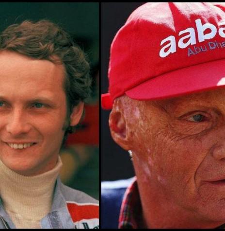 Piloto austríaco Niki Lauda morto em maio de 2019, em imagens  antes e depois do acidente com o rosto transformado por causa das queimaduras e cirurgias plásticas.  Imagem: NY Times - FOTO 19 -